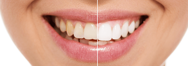 How Redlands Gentle Dental can whiten your teeth