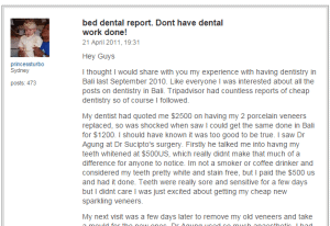 Review of porcelain veneers