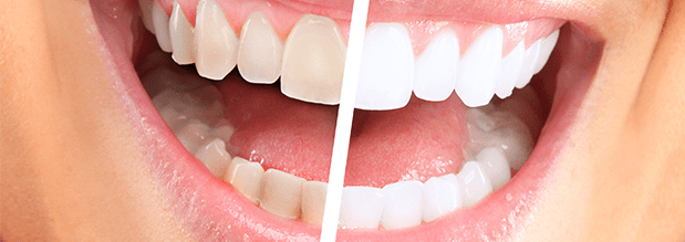 What is Zoom! teeth whitening