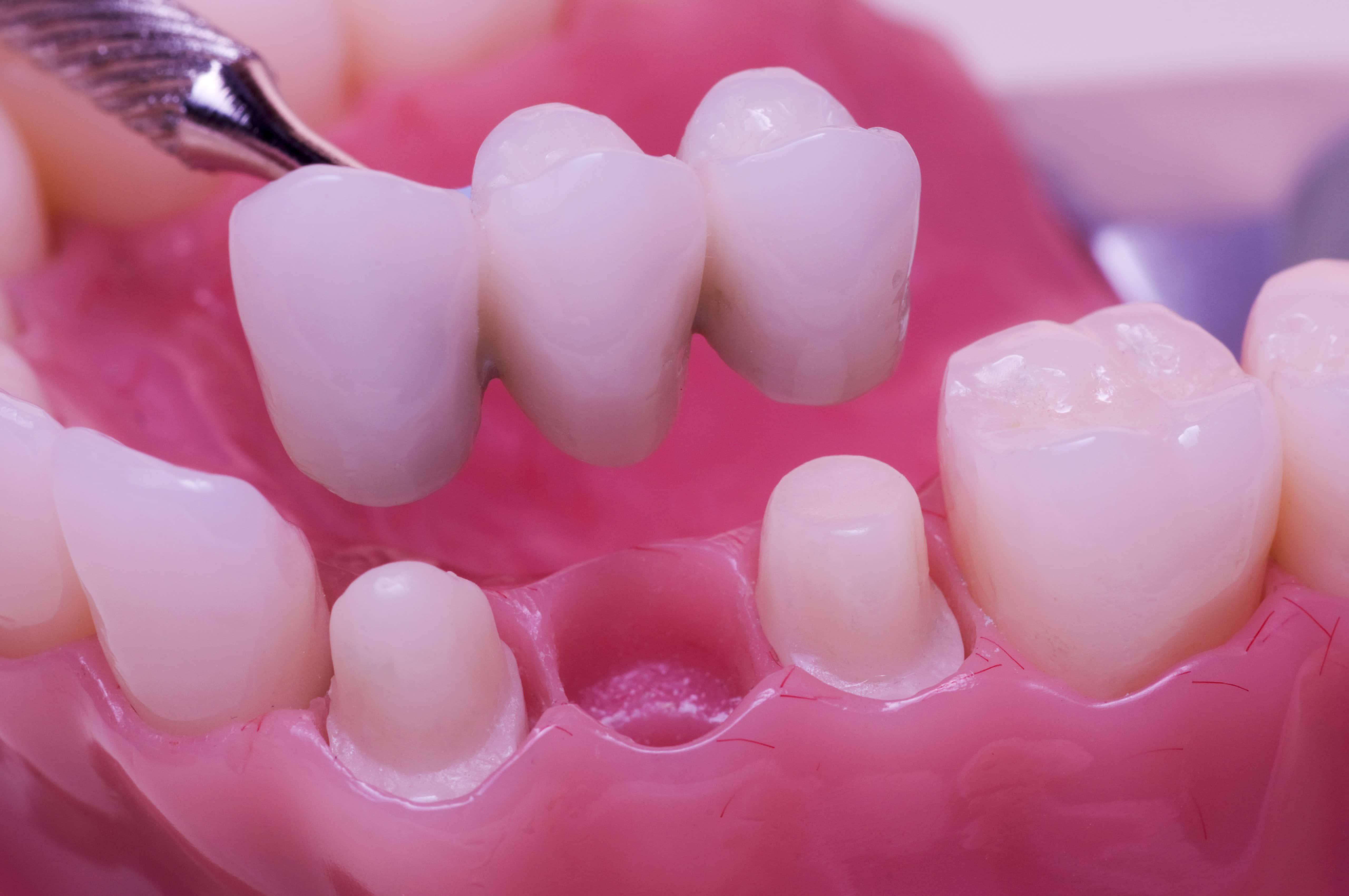 dental crowns and bridges