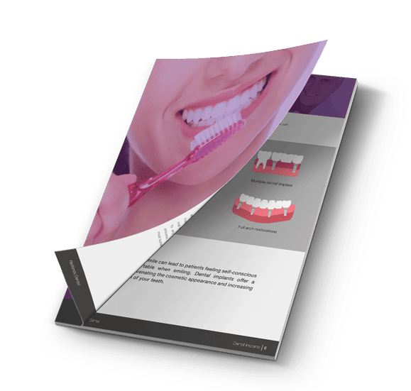 Dental implants free guide