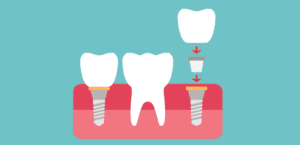 What are my options to replace missing teeth? | Redlands Gentle Dental Care